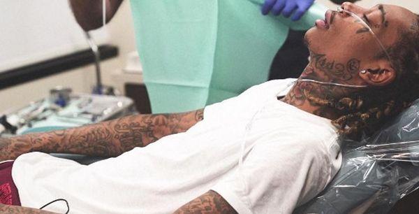 Wiz Khalifa's Wisdom Teeth Extraction Got Dramatic [VIDEO]