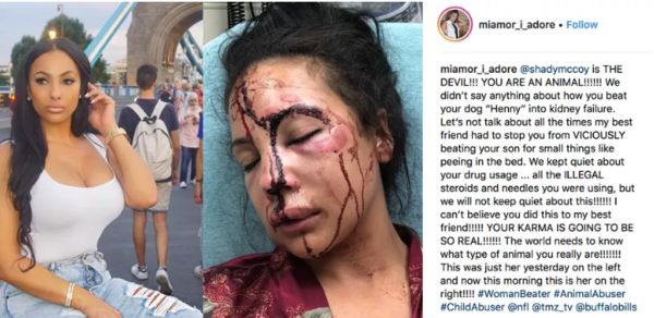 LeSean McCoy Accused Of Beating The Crap Out Of His Girlfriend Graphic Photo]