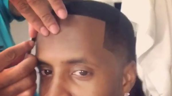 Safaree Shows Fake Hairline Up Close and Says You Can Get One Too