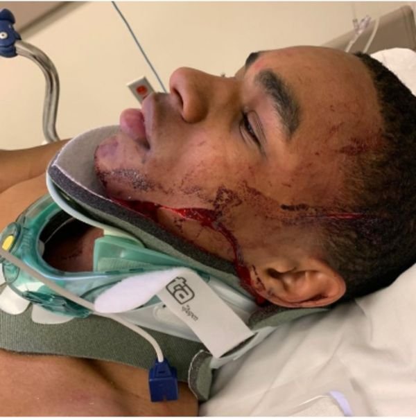 YBN Almighty Hospitalized With Injuries After Getting Robbed On NYC Street